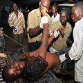 Injured man in Kampala Attack