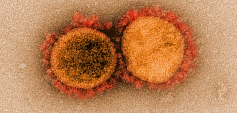 COVID19-virus, cc Flickr NIAID, modified, https://creativecommons.org/licenses/by/2.0/